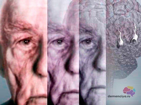 Альцгеймер у молодых