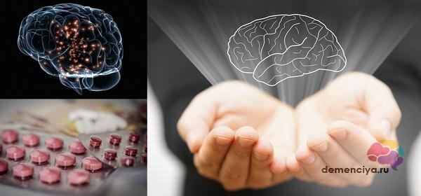Препараты нейропротекторы защищают мозг при деменции