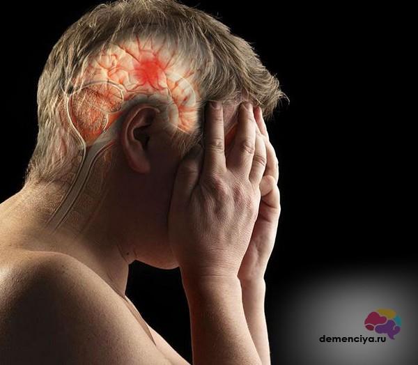 Сосудистая деменция на фоне инсульта препараты