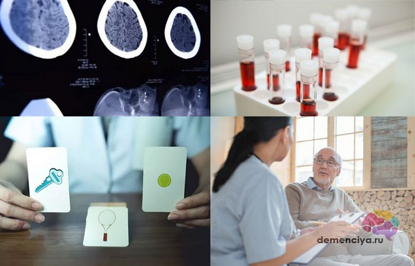 Диагностика болезни деменция