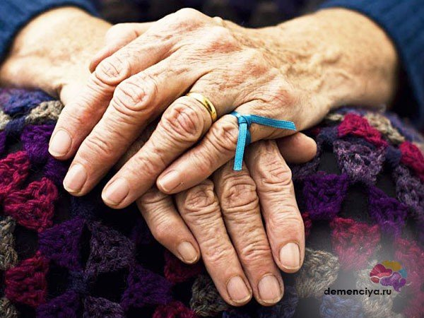 Подкорковая сосудистая деменция причина смерти