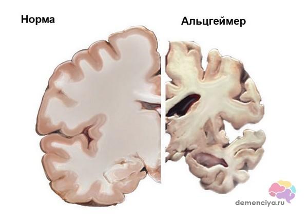 Мозг больного Альцгеймером после вскрытия сравнение с нормой