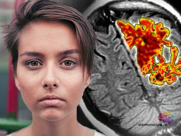 Болезнь Альцгеймера – проявления и что делать