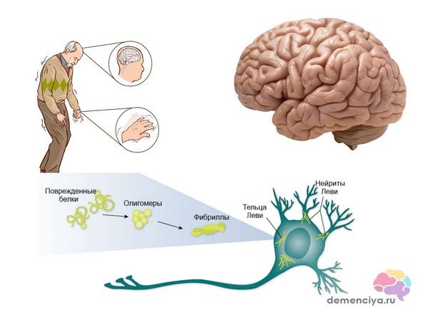 Деменция на фоне таких причин, как болезни Альцгеймера и телец Леви