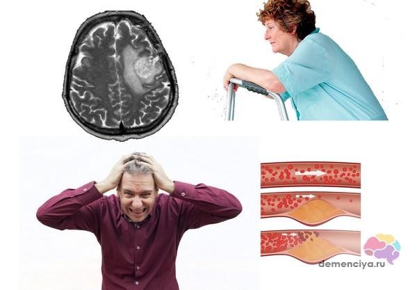 Фоновые состояния усугубляют течение деменции