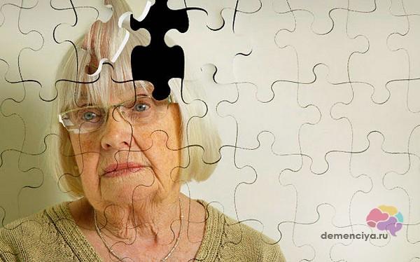 Продолжительность стадий деменции и прогноз развития