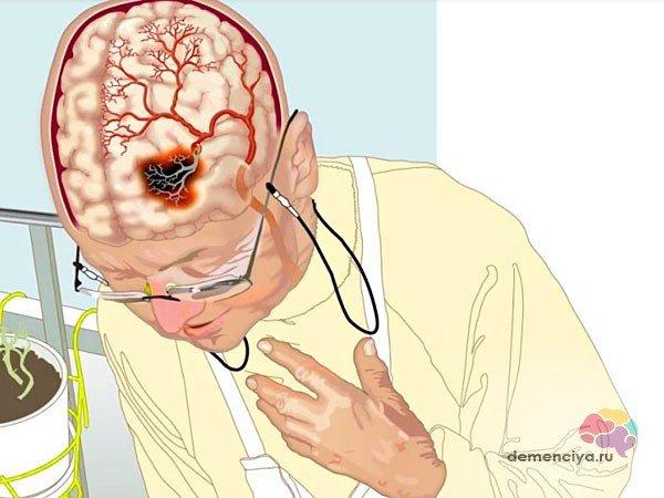 Деменция после инсульта
