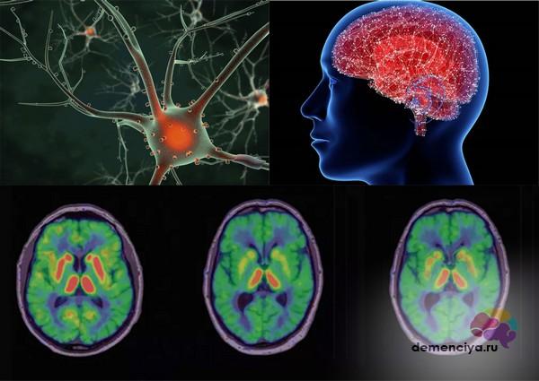 Гибель нейронов при болезни Паркинсона