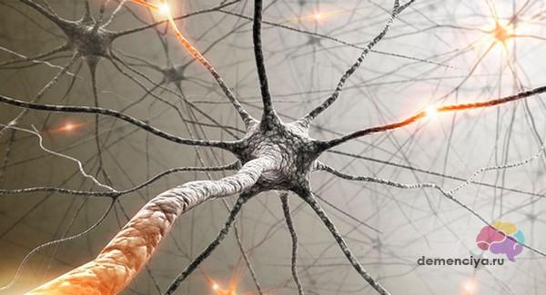 Гибель нейронов при деменции